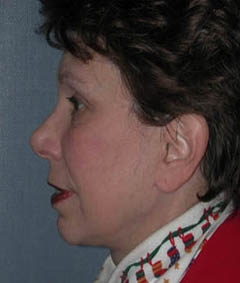 Face Lift and Neck Lift Patient 87764 After Photo # 6