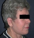 Face Lift and Neck Lift Patient 52396 After Photo Thumbnail # 4