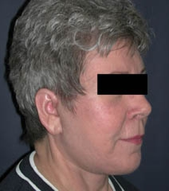 Face Lift and Neck Lift Patient 52396 After Photo # 4