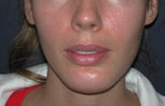 Chin Enhancement Patient 68635 After Photo # 4