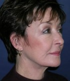 Face Lift and Neck Lift Patient 62384 After Photo Thumbnail # 4
