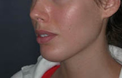 Chin Enhancement Patient 68635 After Photo # 6