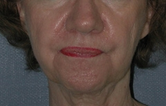 Chin Enhancement Patient 32040 Before Photo # 3