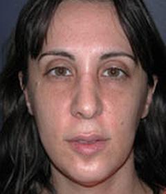 Cheek Enhancement Patient 31865 Before Photo # 3