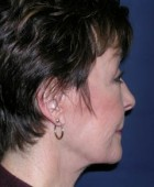 Face Lift and Neck Lift Patient 62384 After Photo Thumbnail # 6