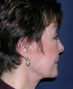 Face Lift and Neck Lift Patient 62384 After Photo # 6