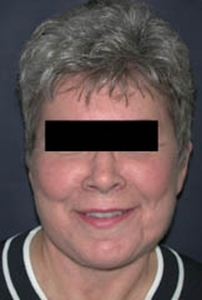 Face Lift and Neck Lift Patient 52396 After Photo # 2