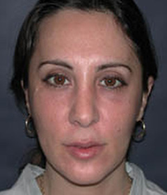 Cheek Enhancement Patient 31865 After Photo # 4