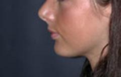 Chin Enhancement Patient 98890 After Photo # 2