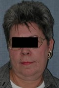 Face Lift and Neck Lift Patient 52396 Before Photo Thumbnail # 1