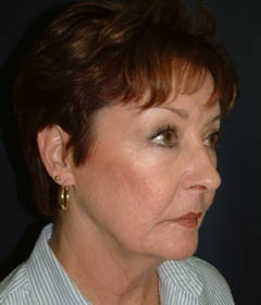 Face Lift and Neck Lift Patient 62384 Before Photo # 3