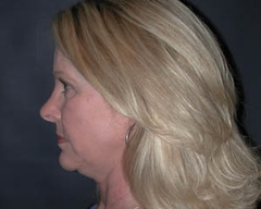 Face Lift and Neck Lift Patient 81195 Before Photo # 5
