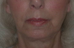 Chin Enhancement Patient 67772 After Photo # 4