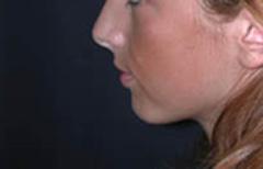 Chin Enhancement Patient 98890 Before Photo # 1