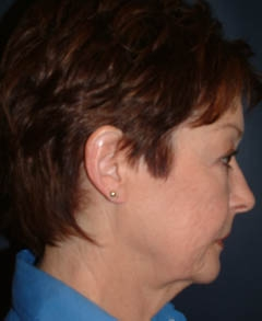Face Lift and Neck Lift Patient 62384 Before Photo # 5