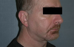 Chin Enhancement Patient 79450 After Photo # 6