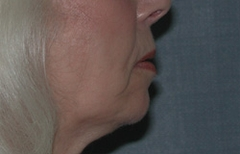 Chin Enhancement Patient 67772 After Photo # 2