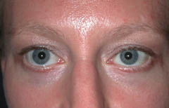 Eyelid Surgery Patient 26007 After Photo # 2