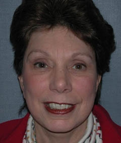 Face Lift and Neck Lift Patient 87764 After Photo # 2