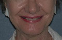 Chin Enhancement Patient 32040 After Photo # 4