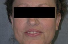 Ear Surgery Patient 67933 After Photo # 2