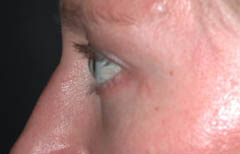 Eyelid Surgery Patient 26007 After Photo # 4