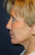 Facelift Patient 33485 After Photo Thumbnail # 6