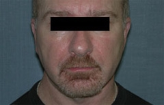 Chin Enhancement Patient 79450 After Photo # 4