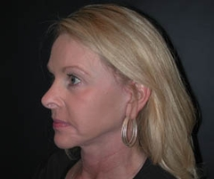 Face Lift and Neck Lift Patient 81195 After Photo # 4