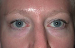 Eyelid Surgery Patient 26007 Before Photo # 1