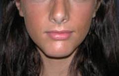 Chin Enhancement Patient 98890 After Photo # 4
