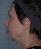 Face Lift and Neck Lift Patient 87764 Before Photo Thumbnail # 5