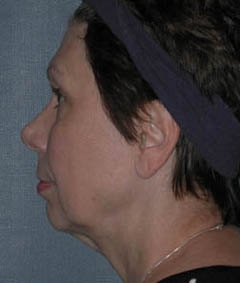 Face Lift and Neck Lift Patient 87764 Before Photo # 5