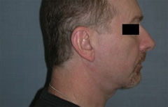 Chin Enhancement Patient 79450 After Photo # 2