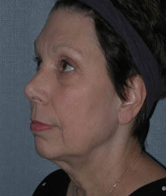 Face Lift and Neck Lift Patient 87764 Before Photo # 3