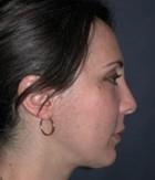 Cheek Enhancement Patient 31865 After Photo Thumbnail # 2