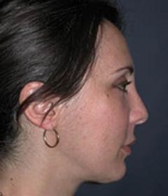 Cheek Enhancement Patient 31865 After Photo # 2