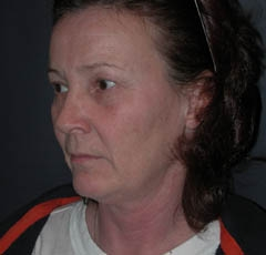 Eyelid Surgery Patient 26051 Before Photo # 3