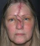 Skin Cancer Patient