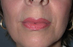 Facial Fillers Patient 64799 After Photo # 2