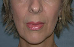 Facial Fillers Patient 64799 Before Photo # 1