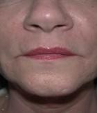 Skin Procedures Patient