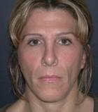 Facial Fillers Patient