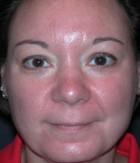 Skin Rejuvenation Patient