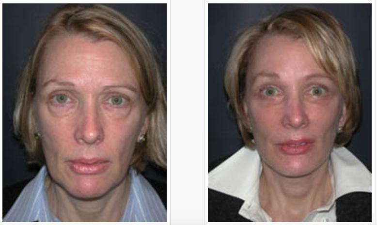 Brow Lift Blog Archives Jones Ent Facial Plastic Surgery